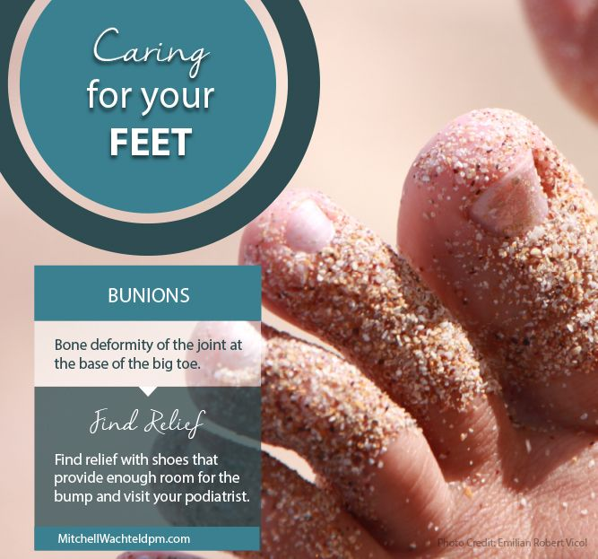 Learn how to treat bunions