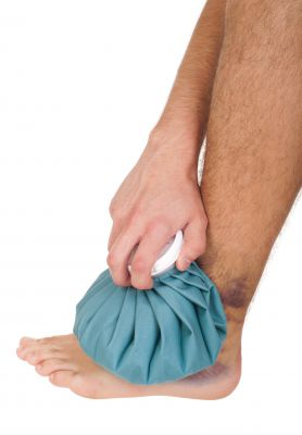 Therapy to Treat an Ankle Sprain