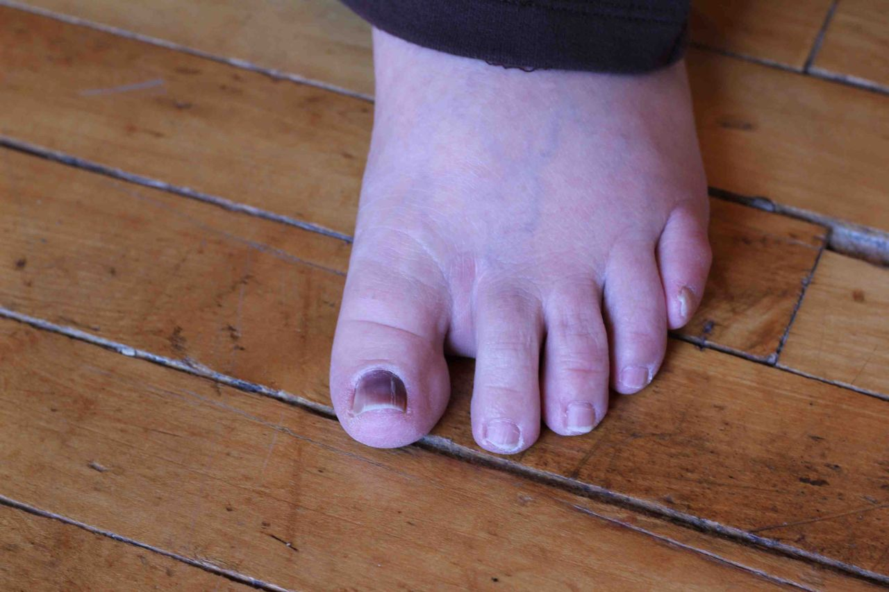 Pain the the top of your toe