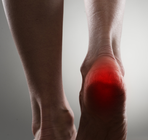 Heel pain from heel spurs