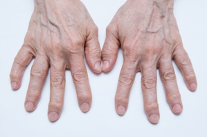 SSDI for osteoarthritis