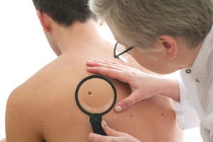 doctor examining mole for skin cancer