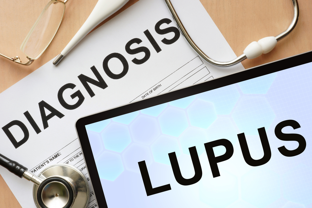 Tablet with diagnosis lupus and stethoscope