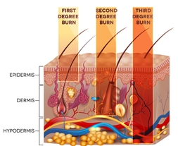 Diagram of First, Second, and Third Degree Burns