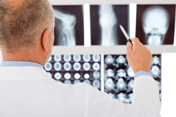 A Doctor Examining a Broken Bone on an X-ray