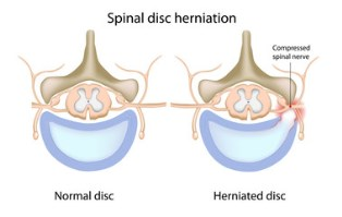 Herniated disc injuries after a car accident