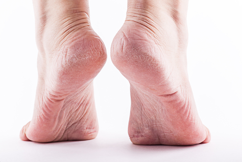 Tenex treatment to stop heel pain!