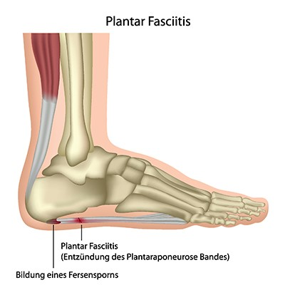Shockwave therapy can help plantar fasciitis pain