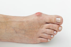 Bunions can be caused by genes or shoes