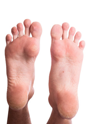 Feet with Corns and Calluses