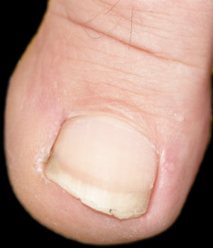 fortunately ingrown toenails are a simple problem with many solutions to alleviate your discomfort and allow them to heal first dr robert parker and the
