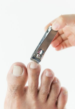 How To Catch Nail Fungus Early