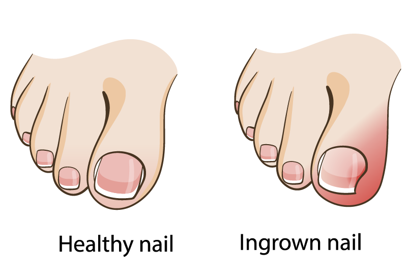Home Treatment for Ingrown Toenails | Family Foot Care & Surgery, LLC