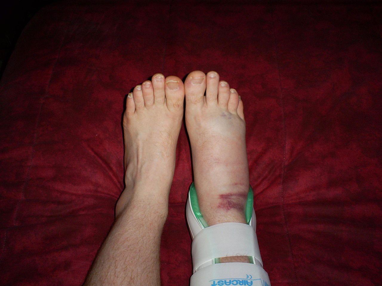 Ankle Sprain in Brace