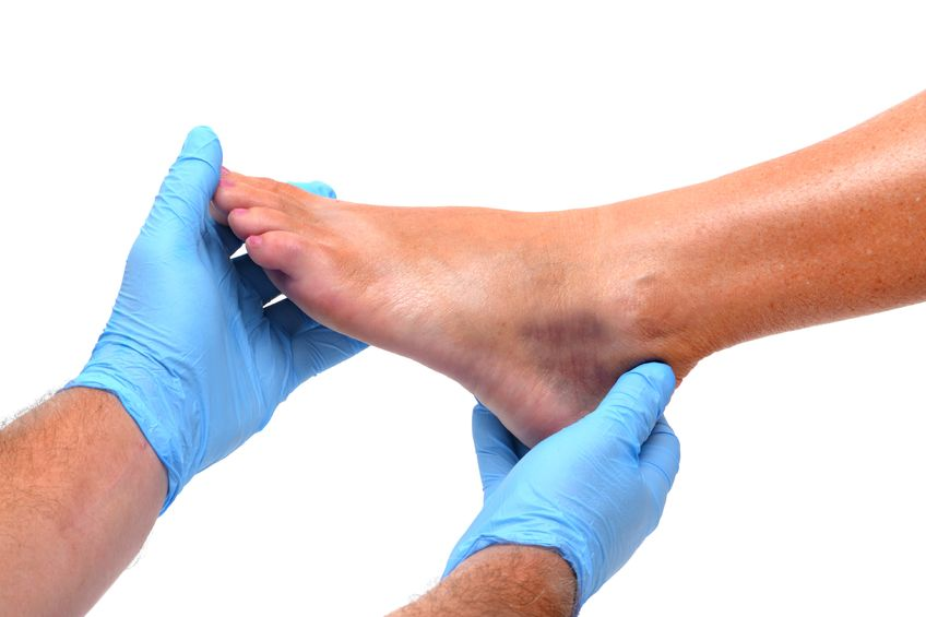 Doctor Examining Injured Ankle