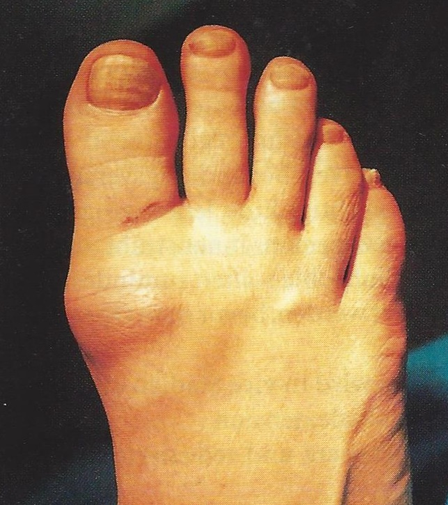 Stiff Big toe (Hallux Rigidus)