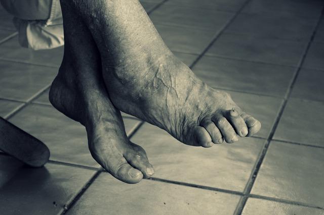 Old Feet