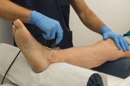 Ultrasound therapy on a foot of an aged man