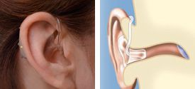 Behind-the-ear devices may be able to compensate for significant hearing loss