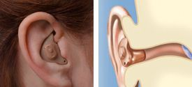 In-the-ear devices can be custom fit to your specific individual needs