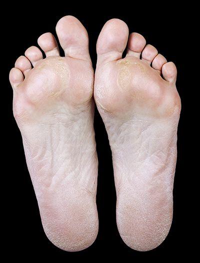 Calluses on feet.