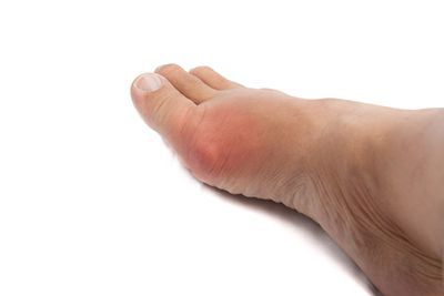 Painful gout