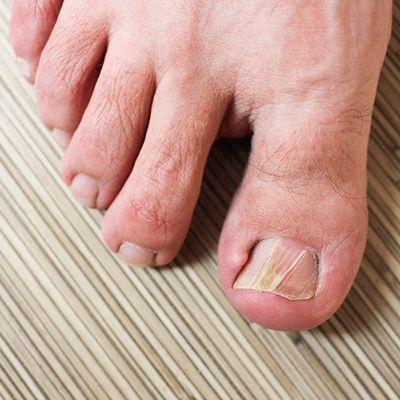 Foot with toenail fungus
