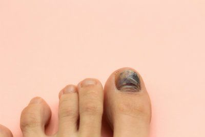 Causes of black toenails