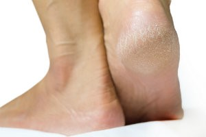 Taking care of skin and nail on feet is important to avoid cracked heels, fungal nails, ingrown nails, and other problems.