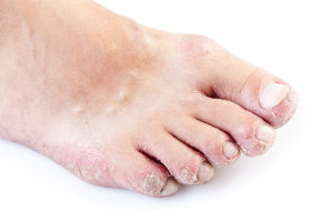 Psoriasis on the foot