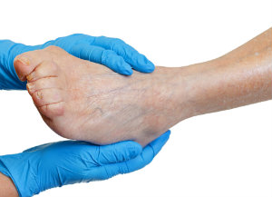 Treating a Bunion