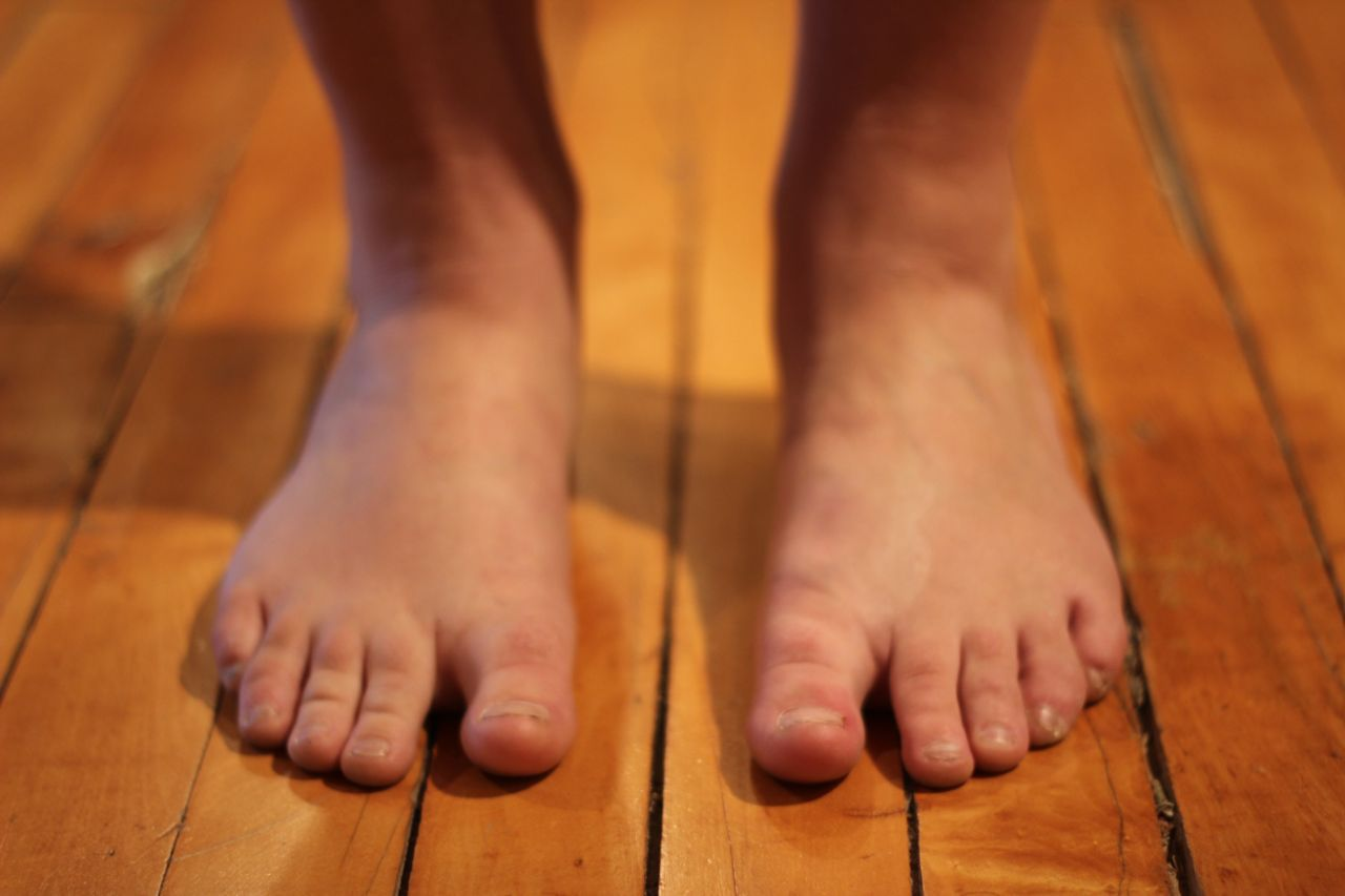 Overpronation may cause foot pain