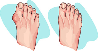 before after bunion treatment diagram
