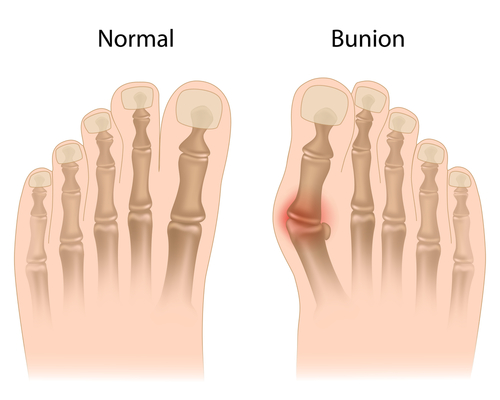 what a bunion looks like