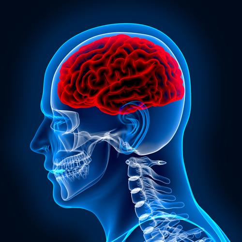 brain hypoxia scan
