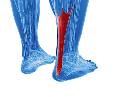 It is important to properly recover from a torn Achilles tendon!