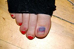 Black Toenail Abnormal Color Change Is Usually A Warning Sign Of Damage Sometimes The Problem Relatively Minimal Like Light Bruise On Surface