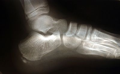 X-Ray of a Heel Spur