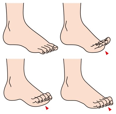 claw and curled toe treatment san antonio texas next step foot rh silvesterfootclinic com diagram of testicular cancer diagram of toe bones