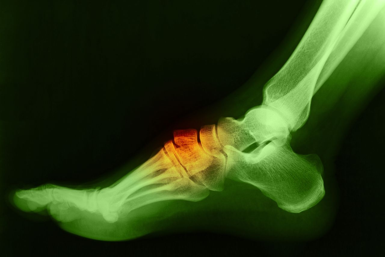Bony Bumps on the Top of your Feet could be Bone Spurs | Next Step ...