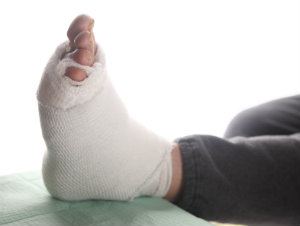 Damaged foot from neglected diabetic care