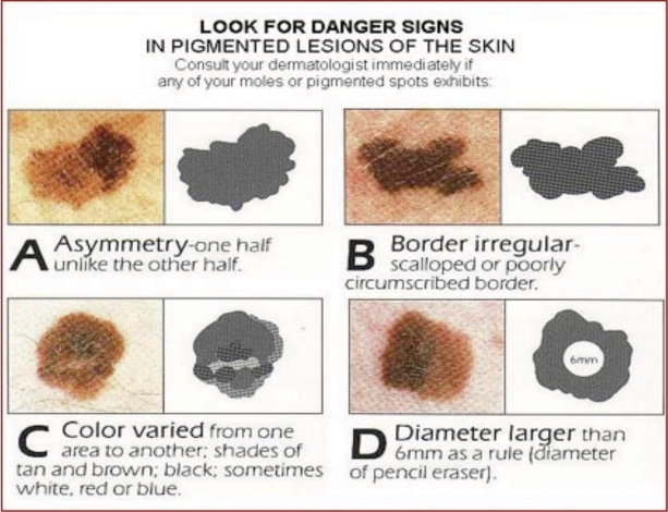 Chart of warning signs for skin cancer