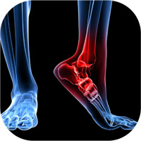 Ankle Discomfort