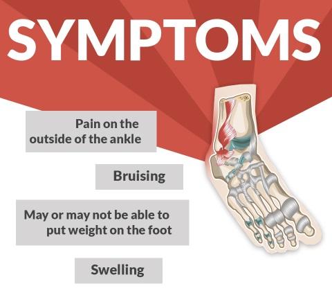 Ankle Sprain Symptoms