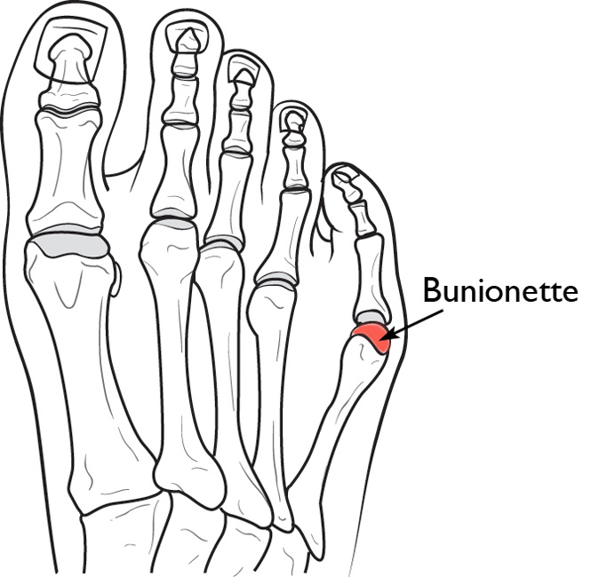 Bunion Treatment in San Antonio | Next Step Foot & Ankle Clinic