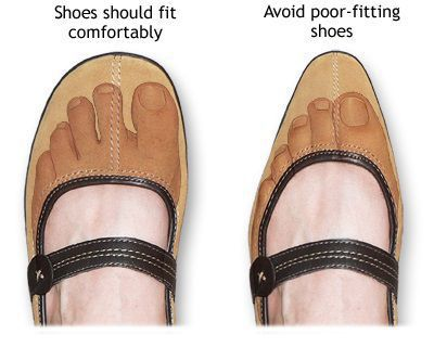 The best shoes to avoid ingrown toenails