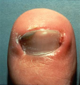 An ingrown toenail that needs help