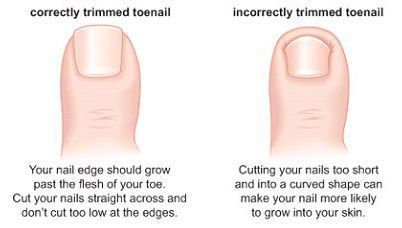 Correct toenail cutting technique