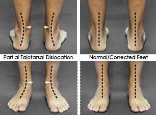 How flat feet affect alignment