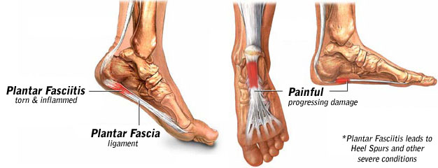 treatment for plantar fasciitis & tendinitis | next step foot, Human Body
